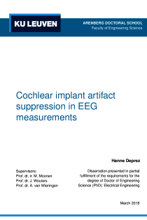 Thumbnail of Cochlear implant artifact suppression in EEG measurements